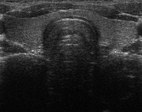 Cuestionan la utilidad de la ecografía para predecir la malignidad de ciertos nódulos tiroideos