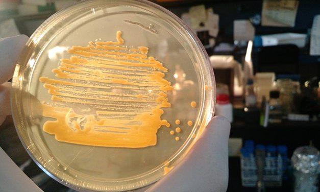 """El """"ojo molecular"""" de una bacteria guía su virulencia"""