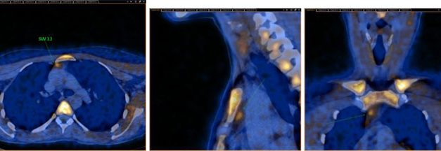 Médicos argentinos proponen método nuclear para confirmar el diagnóstico de hiperparatiroidismo