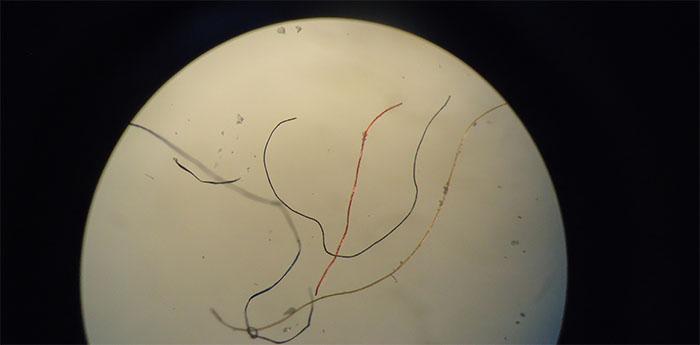 Fibras sintéticas extraídas del tubo digestivo de 11 especies de peces del Río de la Plata. Su origen más frecuente es el lavado de ropa  y productos de higiene personal, como pañales y toallas higiénicas.