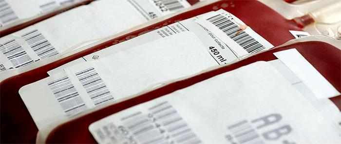 Buscan reemplazar el sistema habitual de donación de sangre