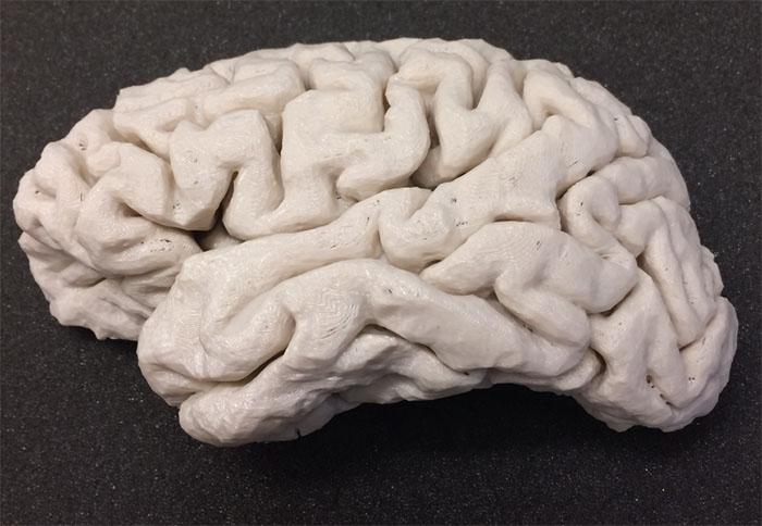 Usan cerebros y cráneos 3D para facilitar las cirugías