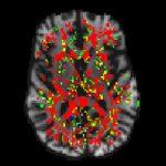 El método liderado por investigadores del Instituto de Neurociencia Cognitiva y Traslacional reduce a la mitad el tiempo de procesamiento de imágenes del cerebro obtenidas con resonancia magnética.