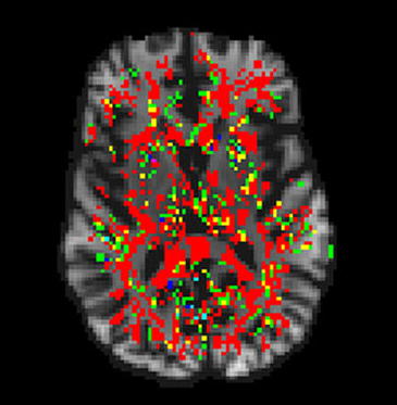 Resonancias del cerebro más rápidas