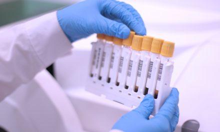 Biotina: una enemiga para los análisis hormonales