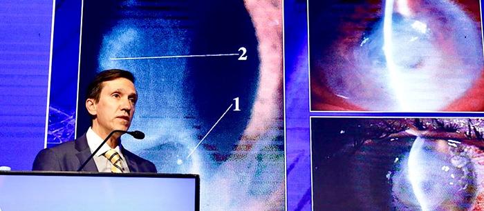 Hallan receptores de entrada del virus de COVID-19 en la superficie ocular