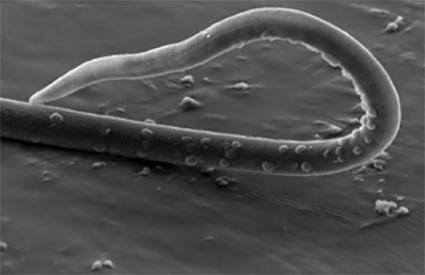 """Parásito disruptivo: el """"gusano látigo"""" podría alterar la microbiota intestinal"""