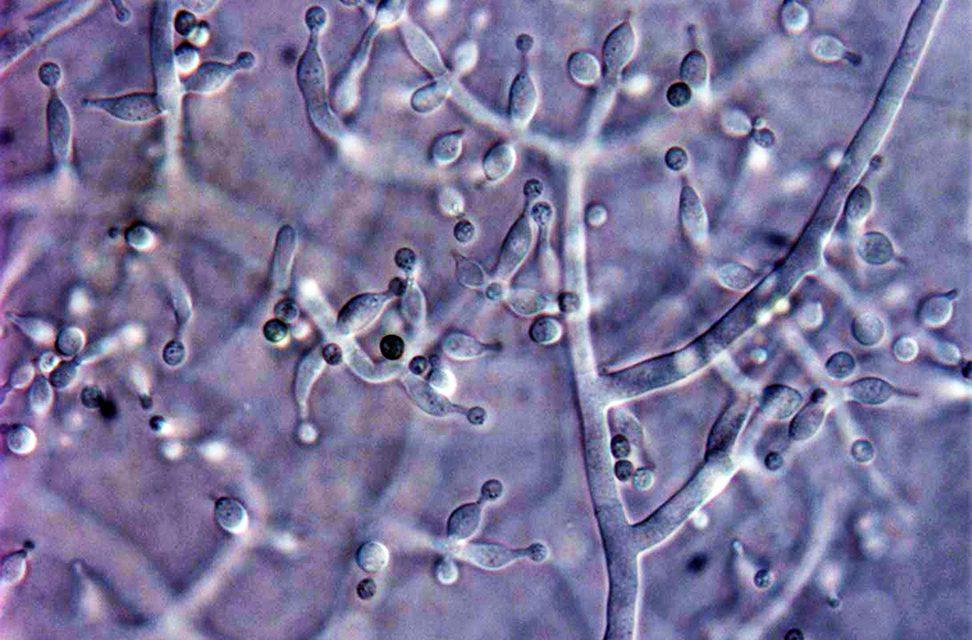 Argentina: identifican tres nuevas especies de hongos que podrían tener propiedades biofungicidas